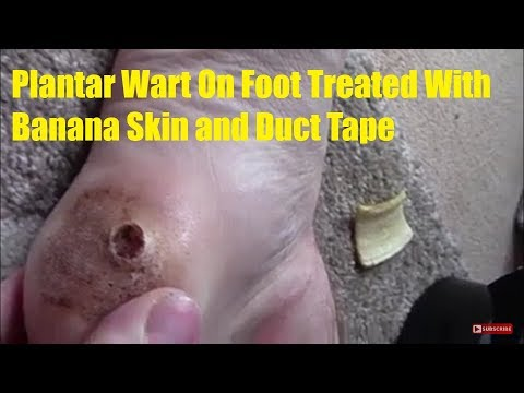 wart treatment banana peel cura de detoxifiere a organismului in 3 zile
