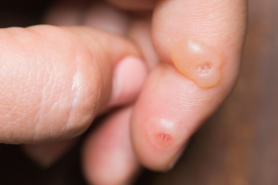 warts on hands suddenly ???????? 2019 ???????? ??