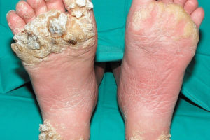 hpv virus and warts on feet dysbiosis burping