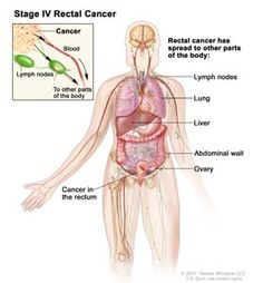 rectal cancer kidney failure