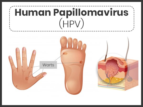 hpv infection cure oxiuros em ingles