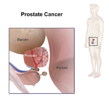 aggressive cancer means