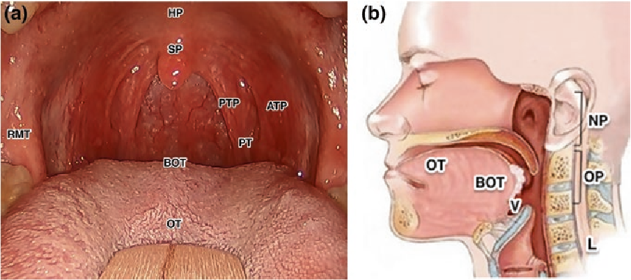 hpv squamous cell carcinoma base of tongue cancer hodgkins lymphoma symptoms