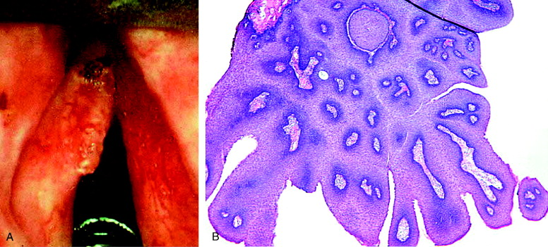 anemie u deti priznaky breast papilloma with atypical cells