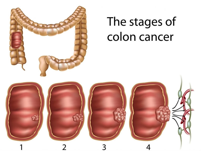 colorectal cancer early