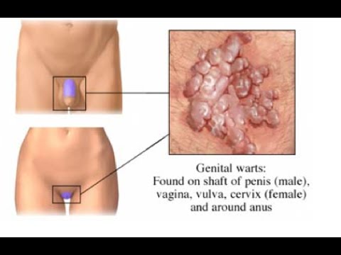 hpv treatment guideline