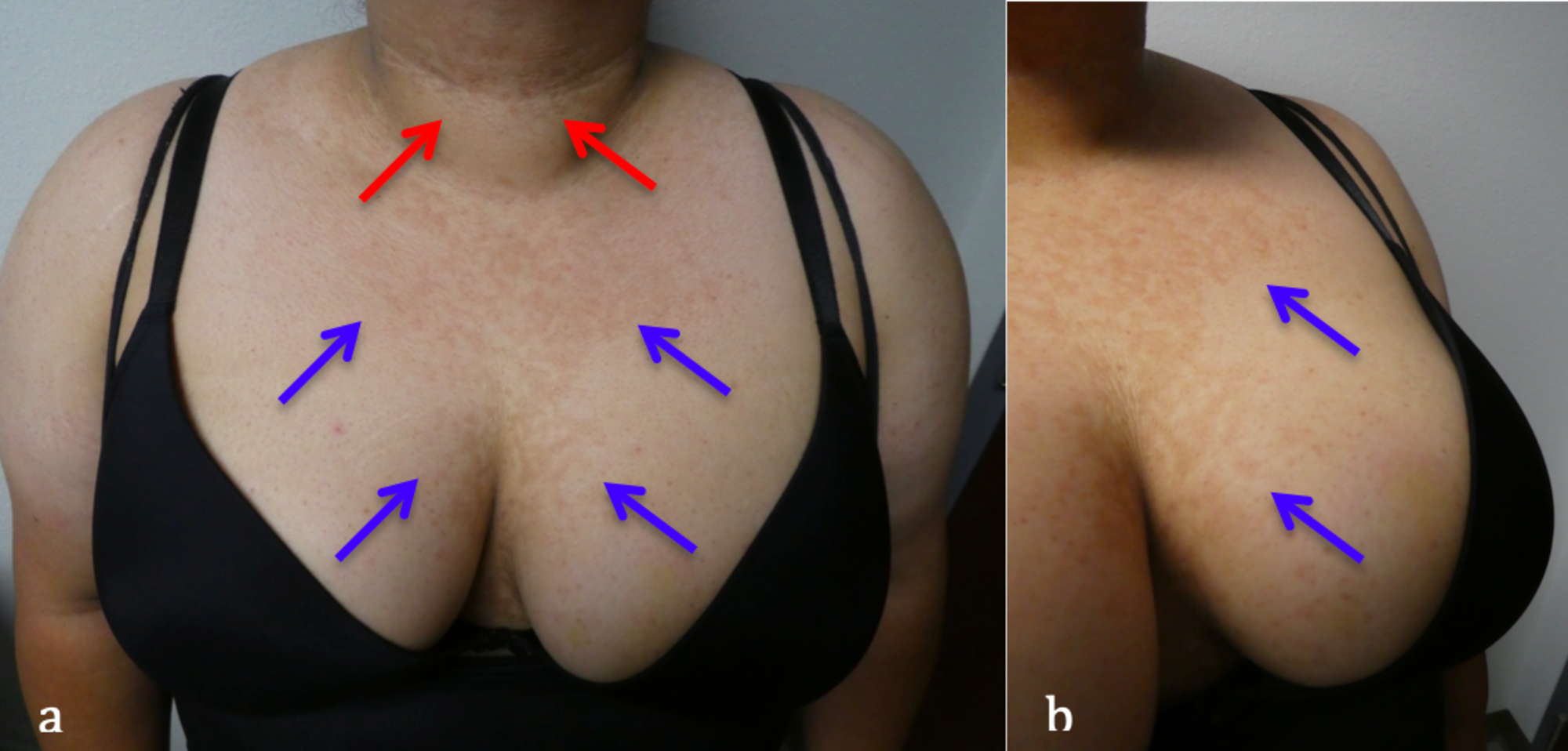 confluent and reticulated papillomatosis weight loss