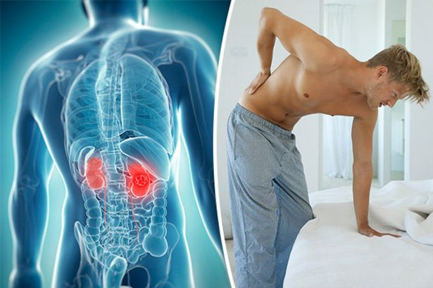 Renal Cancer Back Pain Referințe Bibliografice Pe An
