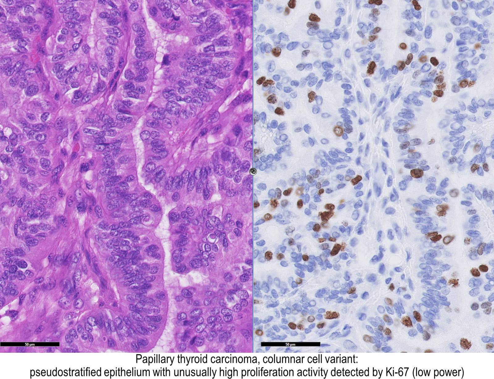papillary thyroid cancer tall cell variant pathology outlines