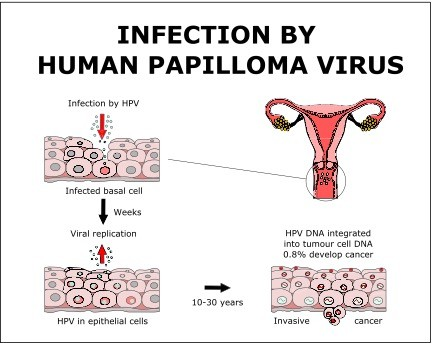 hpv virus and head and neck cancer virus papiloma latente