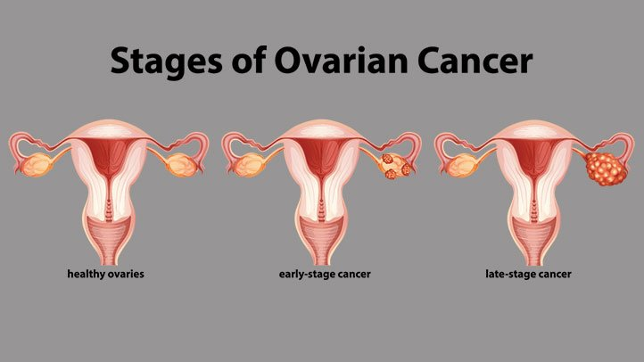 The 4 Stages Of Endometriosis Endometriosis News Ovarian Cancer Final Stages Symptoms
