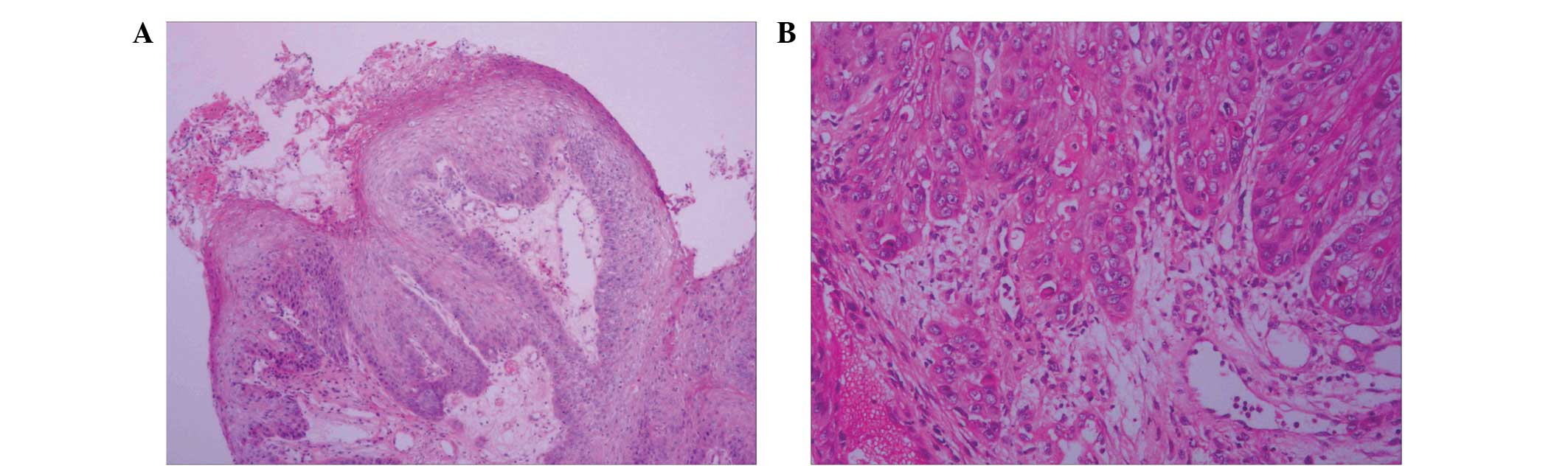 papilloma and squamous cell carcinomas hepatic cancer imaging